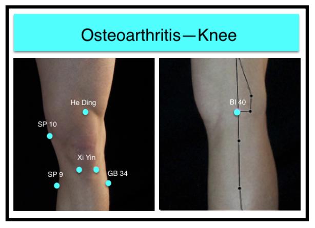Osteoarthritis-Knee1 - Shen Holistics