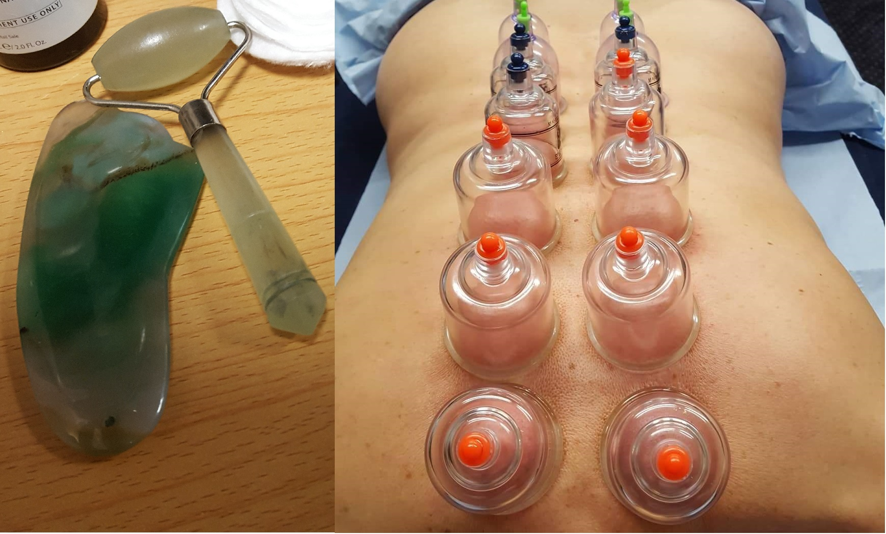 Chinese Cupping / Gua Sha